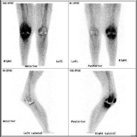 complications of retrolisthesis